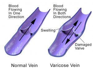 Varicose Vein Treatment Mount Gambier